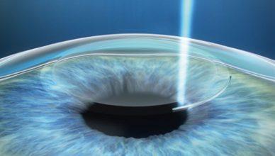 Ako sa zbaviť krátkozrakosti